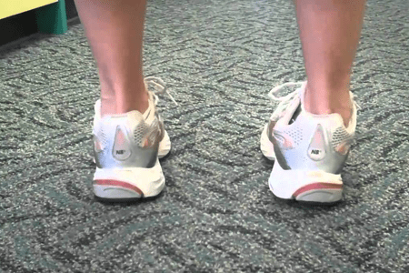 What is Over Supination; How to correct deformity of the foot.