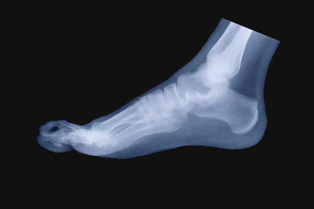 What is a Hammer toe and how to correct them & relieve pain.