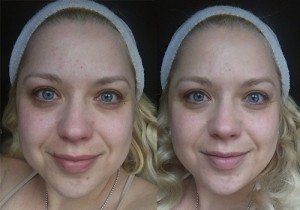 Garnier Miracle Skin Cream - (Left) Before (Right) After