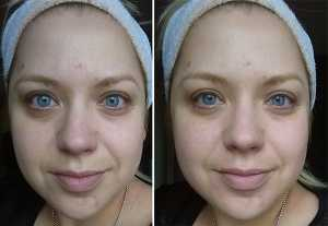 No7 Brilliantly Bare Beauty Enhancer - Before (left) and After (right)