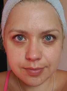 Moisturised skin