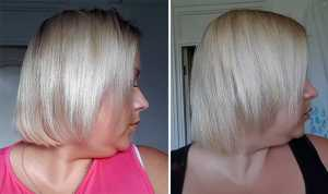 Plantur 21 Nutri-Caffeine Shampoo and Conditioner Before (Left) and After 4 weeks (Right) Left Side of head