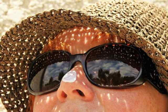 Sunburn: How to Treat and Skin Cancer Risk