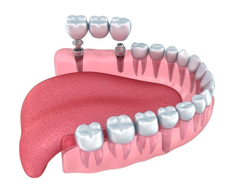 تمایل اصلی بیمار دندانپزشکی در هر نوع پروتز، بازگشت یک نگاه سالم و طبیعی از لبخند است.