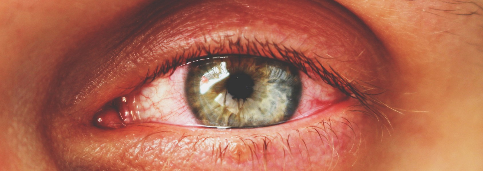 What are the Causes of Red Eyes