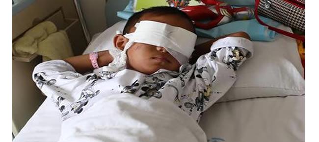O menino, que ficou cego, em sua cama no hospital, com a região dos olhos cobertas por uma faixa Foto: AFP