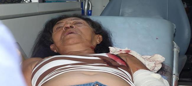 Aposentada sofreu fratura no braço e suspeita de fratura na bacia.