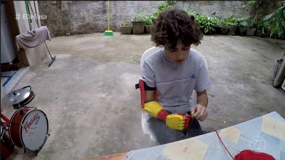 Menino ganha braço mecânico feito em impressora 3D Pr  tese Pepi