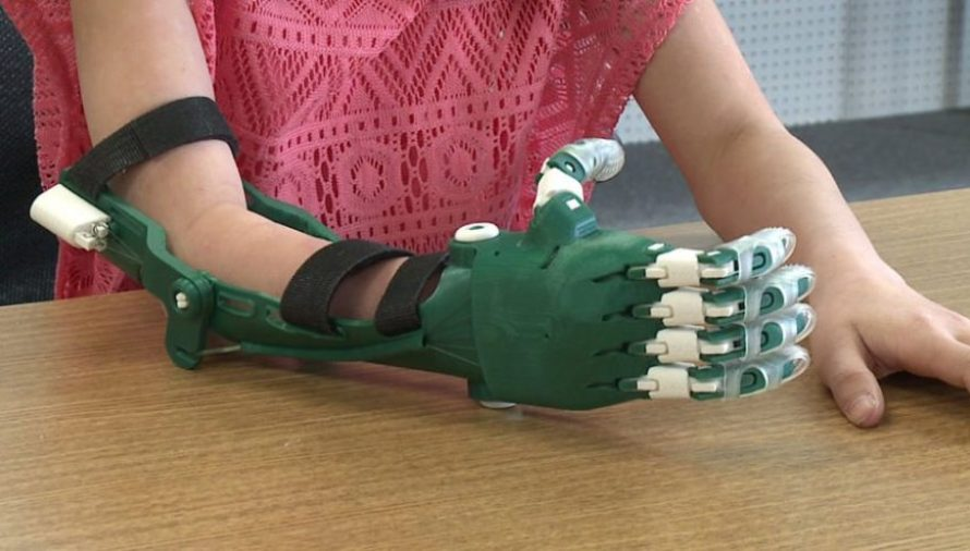 How 3D Printed Prosthetics Can Change The Lives of Millions of Amputees