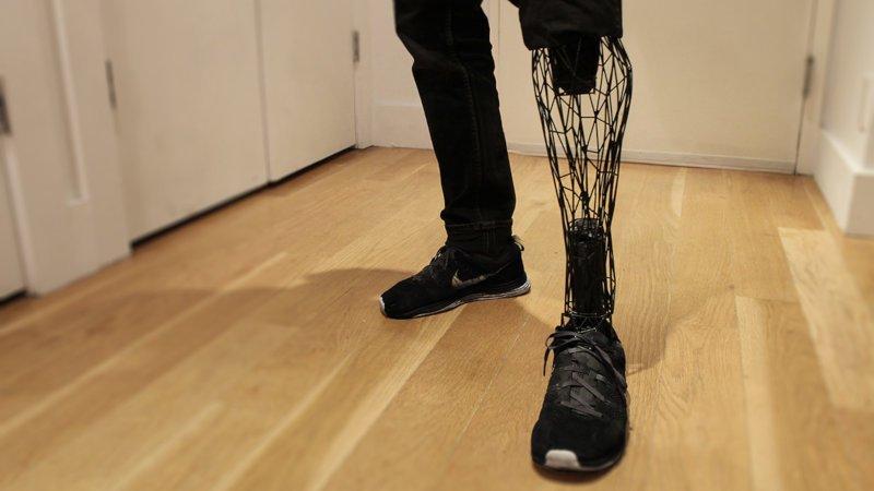exo 3d printed prosthetic leg titanium design