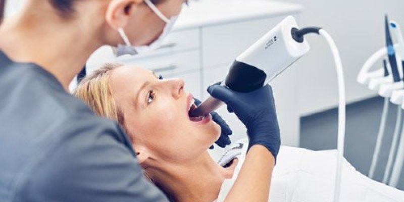 3d scanning a patient's mouth to make oral molds