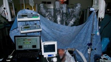 الروبوت دافنشى أثناء العملية الجراحية