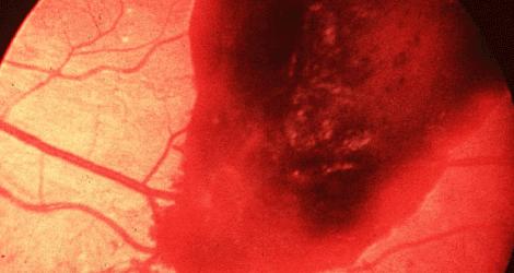 اكتشاف جديد يعالج نزيف الشبكية بالعين