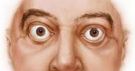 جحوظ العينين