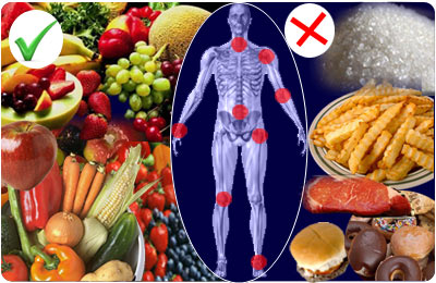 Gout and diet