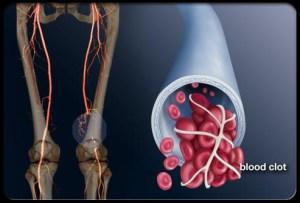 deep-vein-thrombosis-s1-photo-of-blood-clot-in-leg