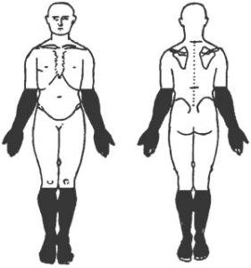 body-chart-peripheral-neuropathy