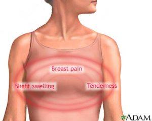 fibrocystic-breasts-2