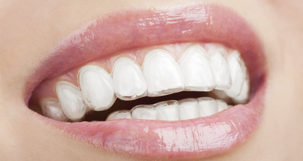 The Importance of Orthodontics Business Support Services
