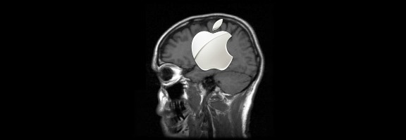 apple mri scan