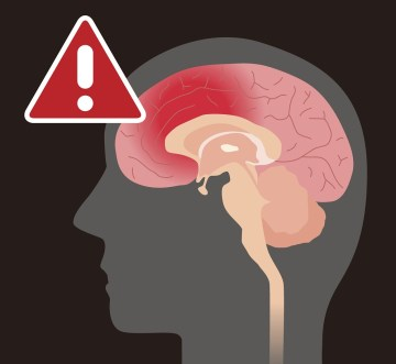 snyder law group brain injury lawyer in Olney