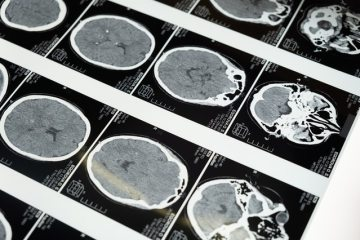 Recognizing the Signs of a Traumatic Brain Injury snyder law group