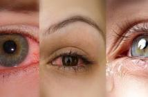 تخلصي من جفاف العيون بطرق طبيعية