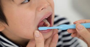 تعرفوا على أسباب تغير لون أسنان الأطفال ونصائح للتغلب على ذلك