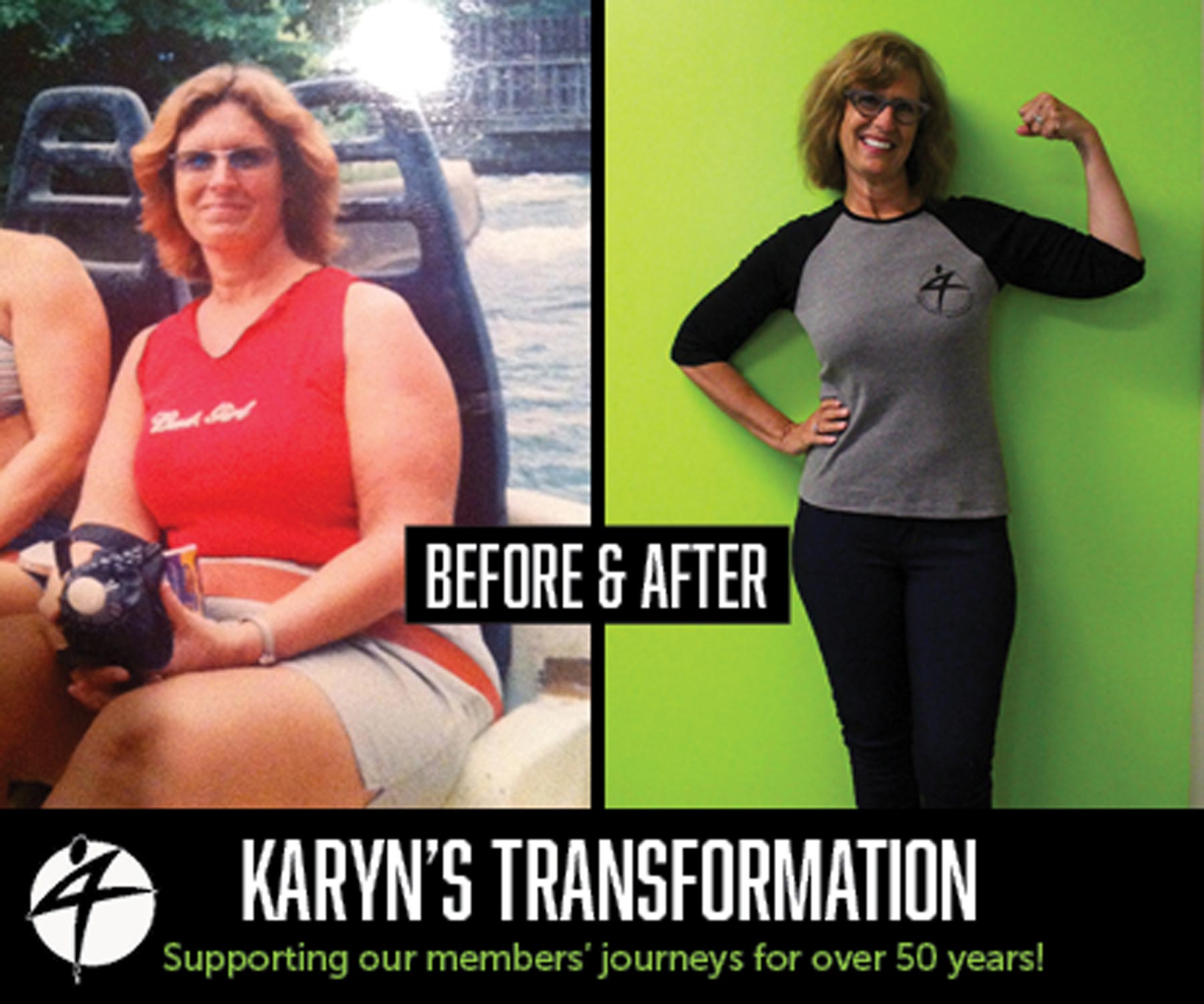 Karyn-Spelde_Before-and-After-Aug-2017