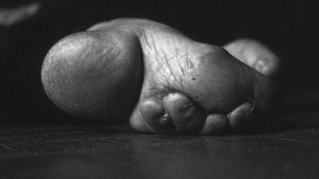 Aguantar los pies vendados es una demostración de que la mujer puede tolerar el dolor y no se quejará ante su marido, dice Farrell.