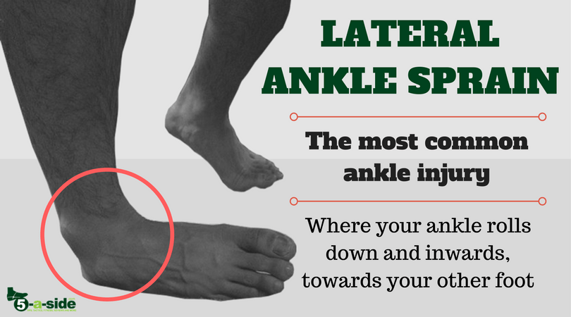 Lateral Ankle Sprain Injury