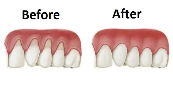Gum Recession and Gum Graft Procedure