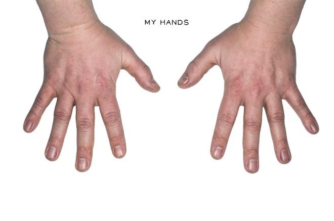 Stewart Walker Hands 5elect5