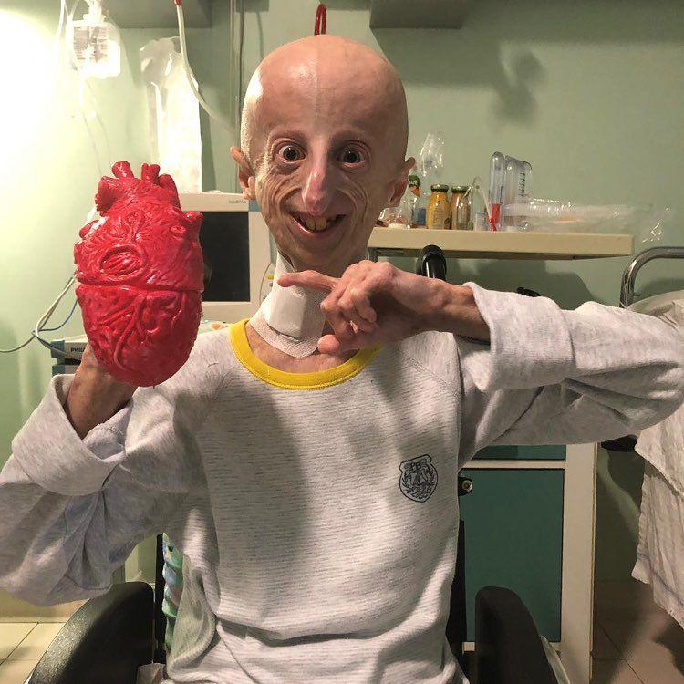 """Sammy Basso: """"Hemos logrado un gran paso contra la progeria"""""""
