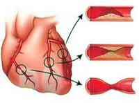 Det er ikke angina, men kan også bringe til myokardieinfarkt. Det er ikke nødvendigt, at alle angreb er helt smertefri, det er muligt at skifte asymptomatisk iskæmi med angina. Som regel detekteres en sådan iskæmi på EKG med lastprøver eller daglig overvågning. Interessant nok, i aterosklerose, forekommer den femte del af patienterne en sådan mulighed for iskæmi, det er også karakteristisk for diabetes til patienter. Det forekommer i løbet af dagen, men med omfattende aterosklerose af koronarfartøjer kan udvikle om natten mod baggrunden for fuld hvile. Det er klart, at patientens iskæmi uden smertefuldt syndrom ikke bemærker.
