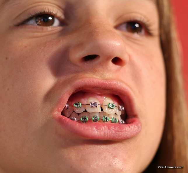 braces_teenage_girl_pink_and_green_bands