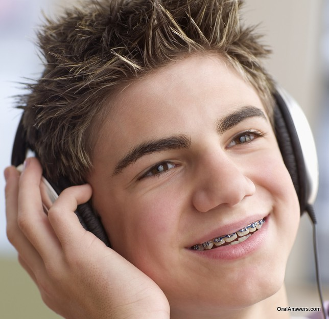 braces_teenager_blue_bands