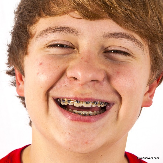 teenage_boy_braces_red_shirt_smiling