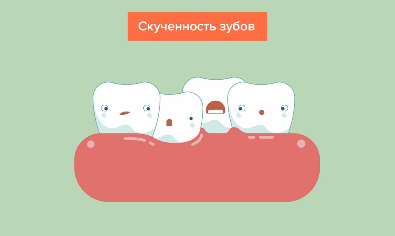 चित्रों में दांतों की खरीद