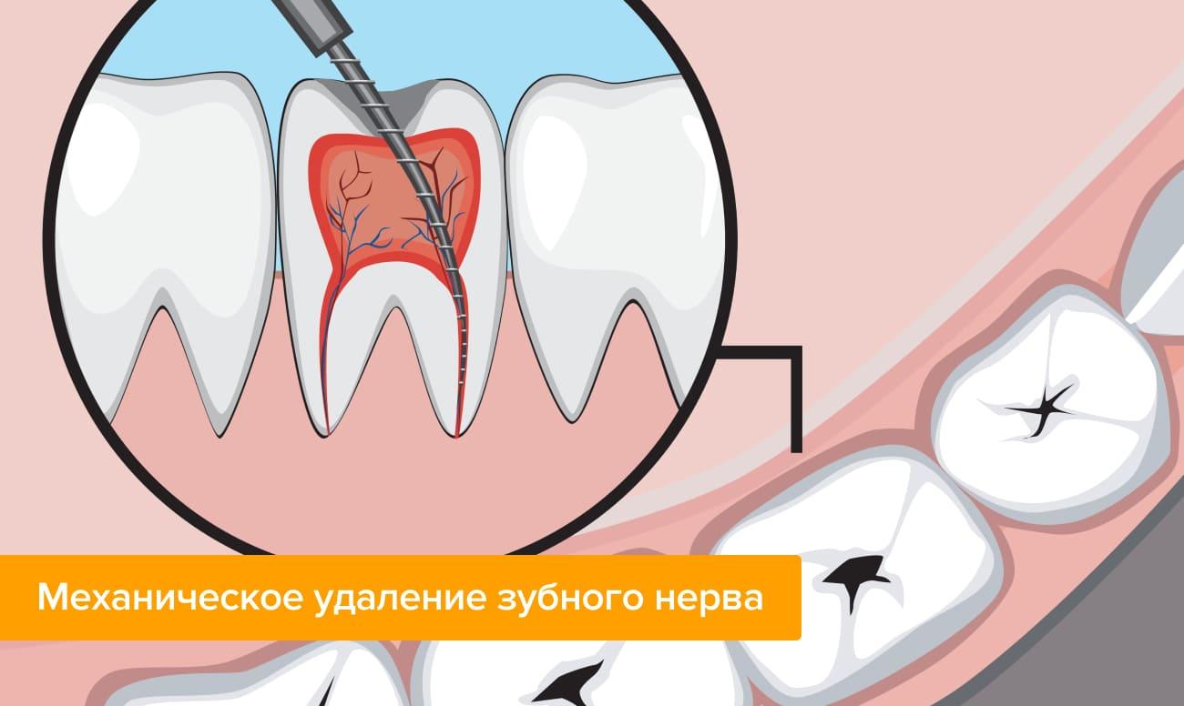 Mekanisk fjernelse af dental nerve i billeder