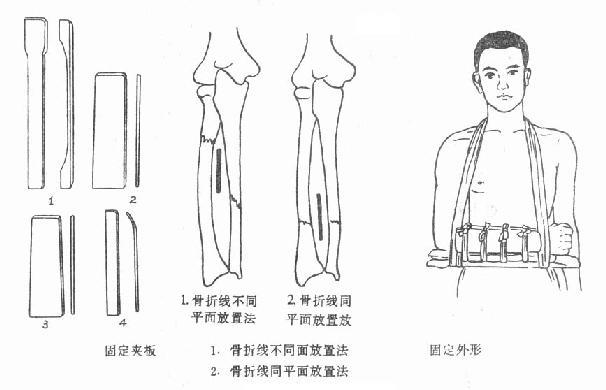 分肌墊放置法