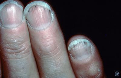 dark-lines-under-fingernails.jpg