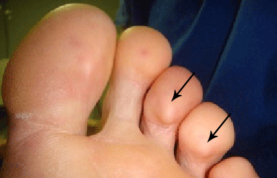 lumps-on-bottom-of-toes.jpg
