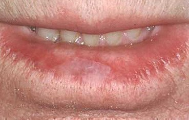 Scale Bottom Lip Jpg