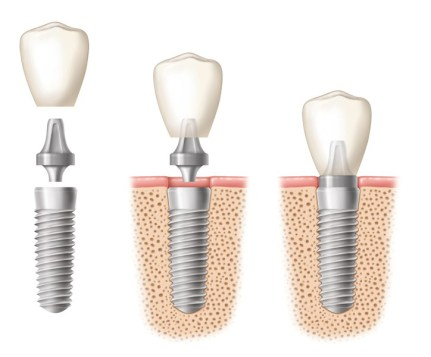Posisi Krusial Implan Gigi- Global Estetik Dental Care