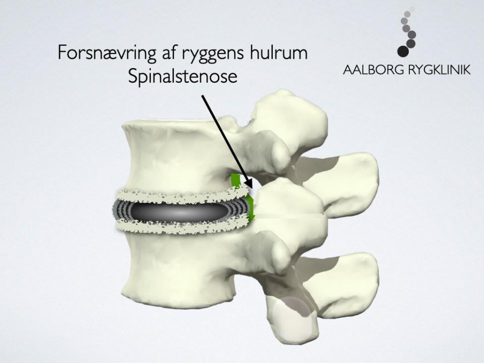 Spinalstenose på grund af degeneration (slidgigt)