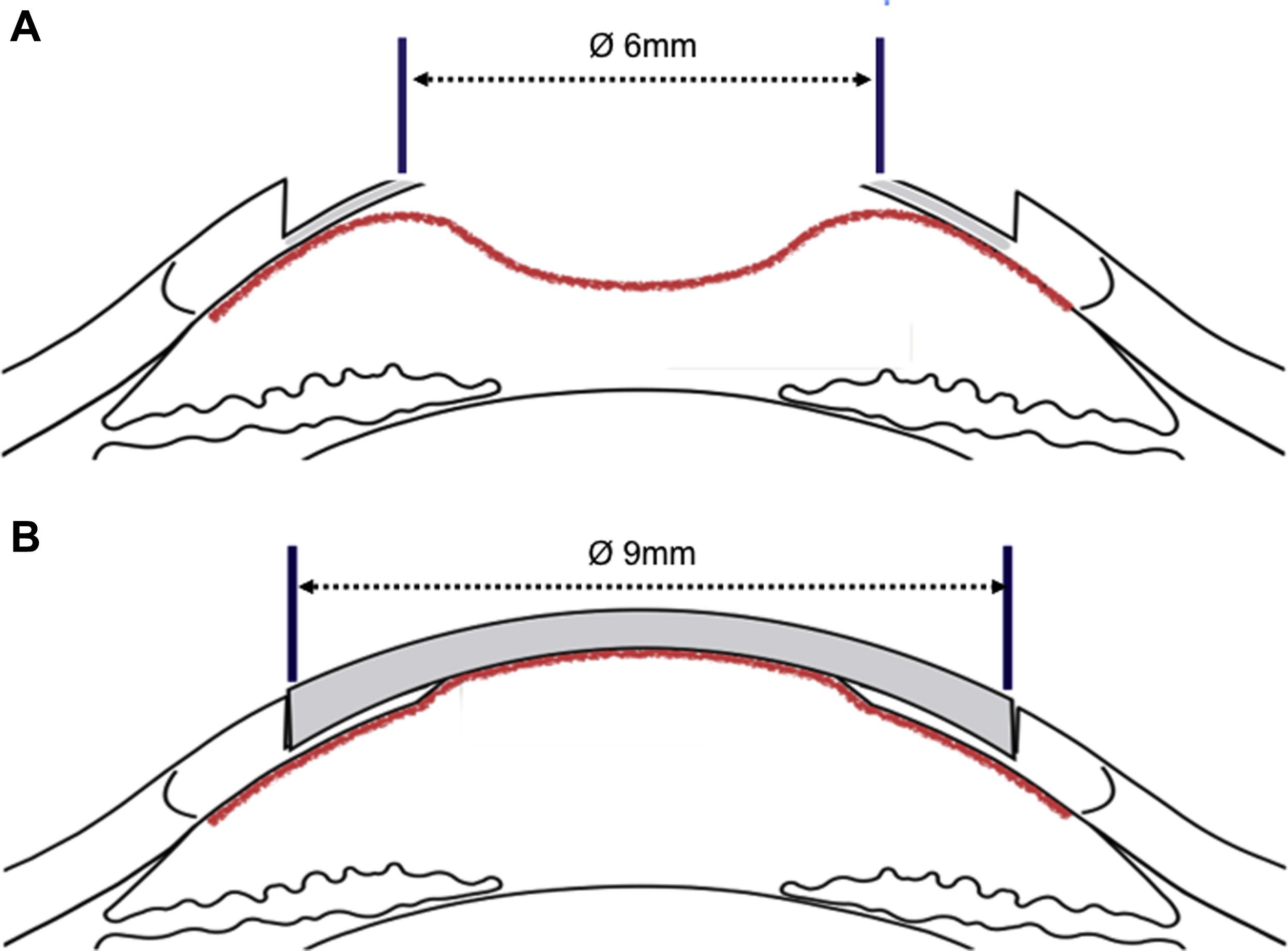 Large 9 Mm Deep Anterior Lamellar Keratoplasty With