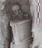Una «catalana» de hace 1.600 años con dientes en los ovarios
