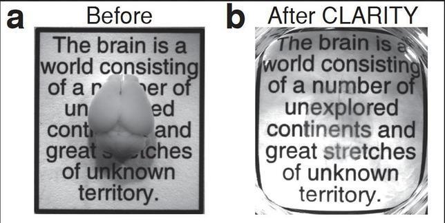 Logran hacer transparente el cerebro para verlo mejor