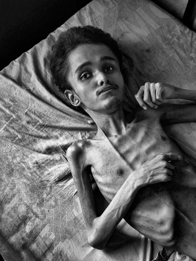 Un joven de tez blanca de 28 años yace con las piernas encogidas sobre una cama en una casa humilde del barrio Altos del Milagro, en la parroquia Coquivacoa de Maracaibo. Su cuerpo está famélico, carece de masa muscular y su piel se encuentra casi pegada a los huesos. El rostro revela una desnutrición severa y una hidrocefalia congénita. Su nombre es Miguel Blanco. Su madre, sin ayuda, le dedica incasablemente sus días. «Le doy lo poco que puedo, yuca y arroz, y le hago pañales de tela», afirma la mujer.